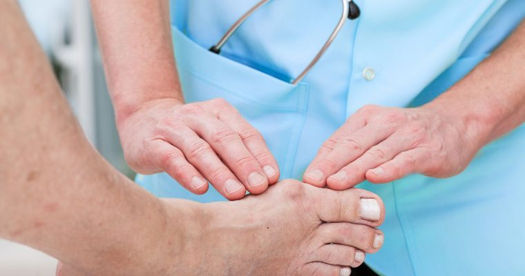 Best Methods of Bunion Treatment