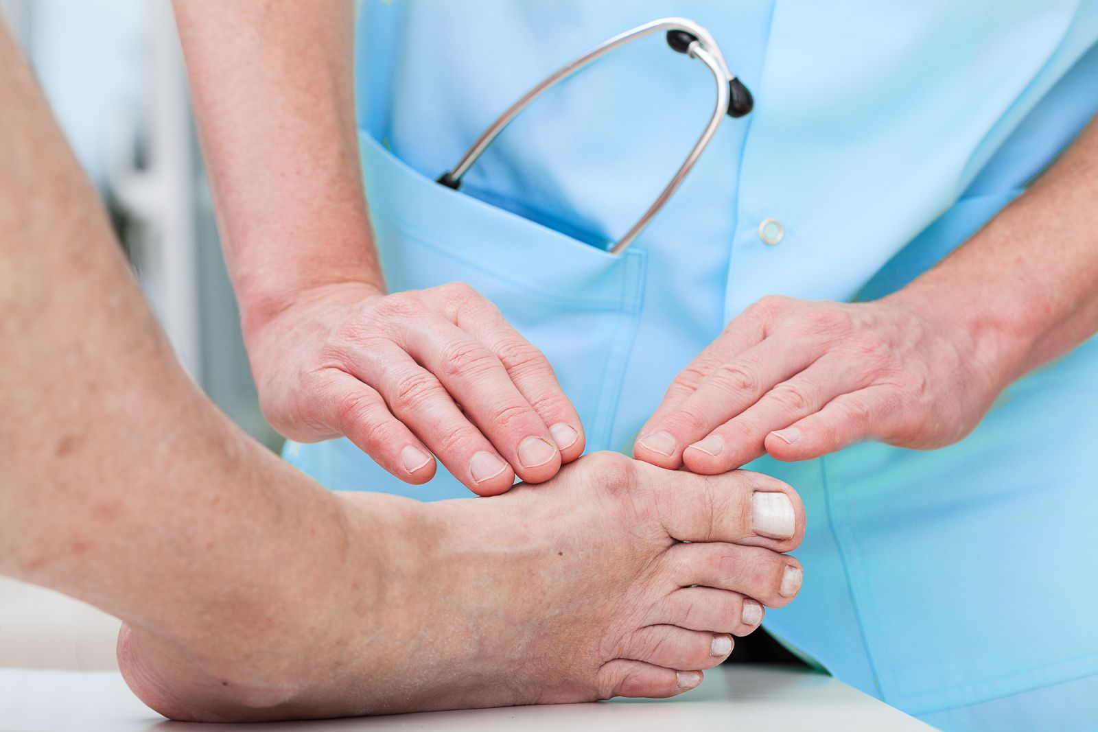 Best Methods of Bunion Treatment