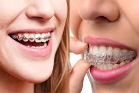 Invisalign Vs. Braces: Which Of These Is Best For Your Teeth