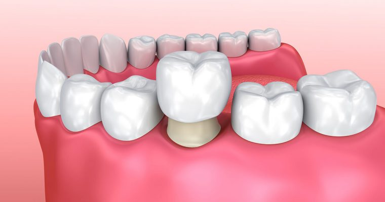 Dental Crown Care Essentials You Need to Know