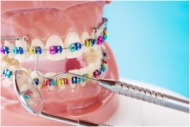 Fixed Dental Orthodontics Pros and Cons