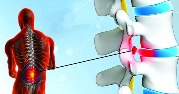 Things to follow to avoid Herniated disc